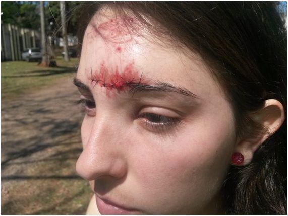 'Enquanto eu cuspia sangue, os vigias riam lá de dentro da universidade', diz a estudante Tamires Schmitt, atingida por uma pedra durante a confusão (Foto: Honório Silva/RPC TV) – Fonte: http://g1.globo.com/pr/norte-noroeste/noticia/2013/09/estudantes-dizem-ter-sido-agredidos-por-vigilantes-dentro-da-uem.html