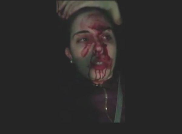 Estudante da UEM, atingida por uma pedra